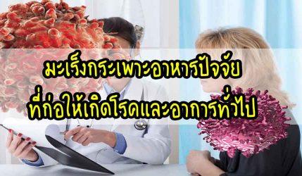 มะเร็ง กระเพาะอาหารปัจจัยที่ก่อให้เกิดโรคและอาการทั่วไป