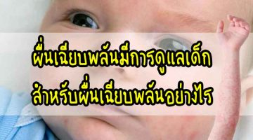 ผื่น เฉียบพลันมีการดูแลเด็กสำหรับผื่นเฉียบพลันอย่างไร