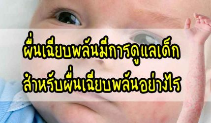 ผื่น เฉียบพลันมีการดูแลเด็กสำหรับผื่นเฉียบพลันอย่างไร