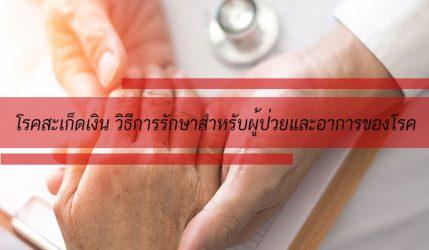 โรคสะเก็ดเงิน วิธีการรักษาสำหรับผู้ป่วยและอาการของโรค