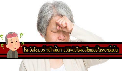 โรคอัลไซเมอร์ วิธีใหม่ในการวินิจฉัยโรคอัลไซเมอร์ในระยะเริ่มต้น